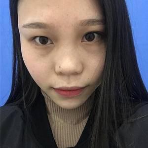 杭州健丽不开刀双眼皮