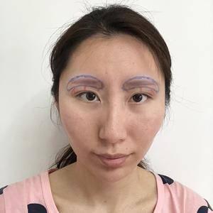 混血感假体眉弓