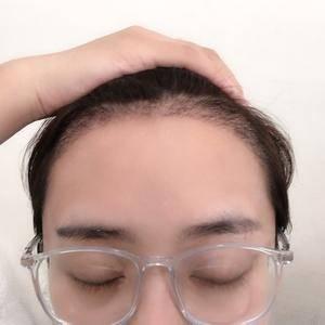 种植发际线后,可以快乐的扎丸子头啦