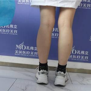 瘦腿针日记