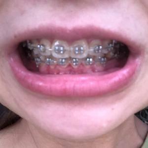 金属矫正牙齿林子