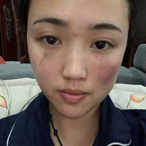 疤痕修复 手术祛疤