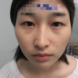 成都素美医疗美容(切开双眼皮)