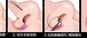 鼻子怎么做才好看?分型分治才是正解!