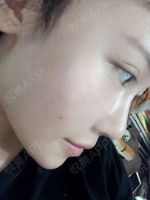 这次给大家拍了一些特写的照片,可以更近距离的看见鼻型的效果感觉我做完鼻子像换了一个脸的感觉,反正怎么拍照都是好看的,可能...