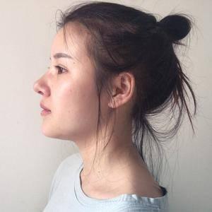 假体鼻综合改变