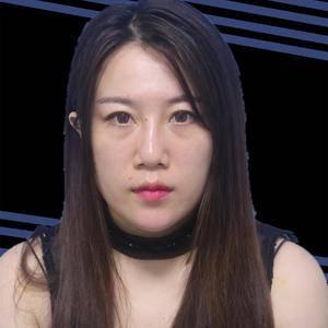杭州健丽不开刀去眼袋