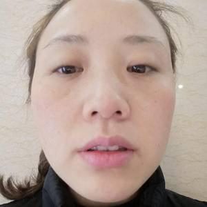 瘦脸针日记本