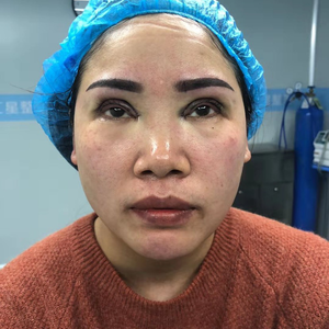 田雯双眼皮修复术后1天第3页图
