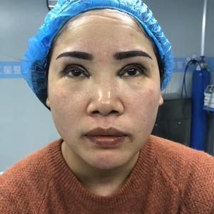 田雯双眼皮修复术后1天第1页图