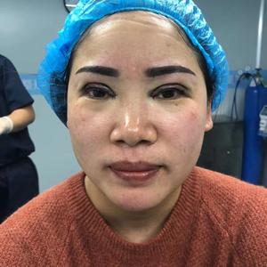 田雯双眼皮修复术后1天第2页图