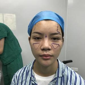 假体隆鼻手术