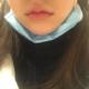 护士拆线很仔细,不会痛,嘴巴还是肿肿的,我想要做的夸张一些的m唇,拍照会好看一些,刚拆线虽然有点肿,...