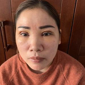 田雯双眼皮修复术后4天第3页图