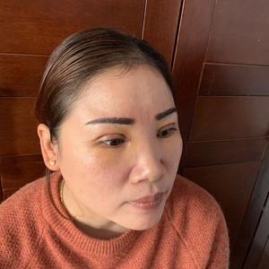田雯双眼皮修复术后4天第2页图