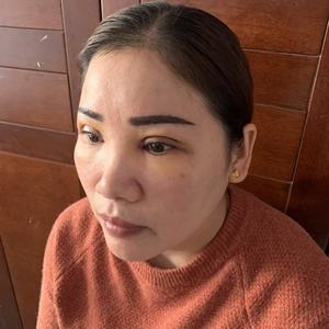 田雯双眼皮修复术后4天第1页图