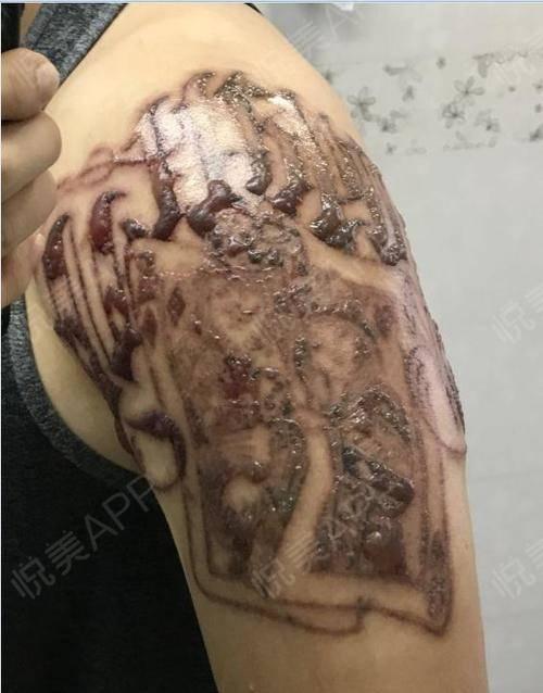 洗纹身术后1天_洗纹绣&纹身术后1天_皮肤美容术后1天_惊雷分享图片2