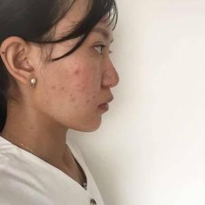 玻尿酸豐下巴+祛痘美膚