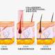 南宁大麦植发专科医院告诉你植发效果受什么影响?