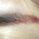 纹了个眉尾,还是去年的事了,因为我眉头的眉毛多,眉尾却长不出毛来,也就是所谓的有头没尾吧。现在的半永久纹眉又很流行,所以...