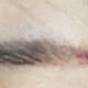 是一天比一天好了,红色也在渐渐消失,但也还很明显。我已经不抹药了,在做一些简单的护肤,不会影响到眉毛的恢复吧。之前眉尾处...