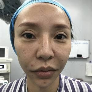 鼻子大改造