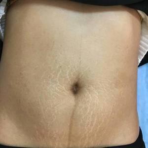激光祛妊娠纹 紧致皮肤
