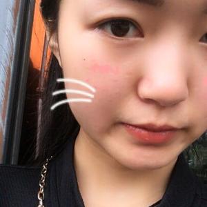 比西京医院技术还好的医生给我做的双眼皮隆鼻