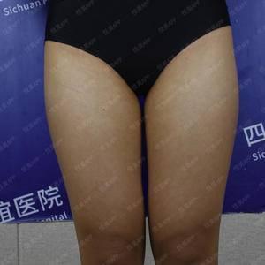 大腿膝盖内侧吸脂