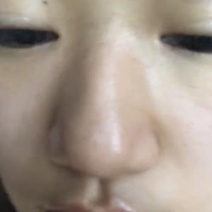 自体肋软骨隆鼻