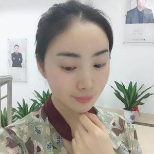 朴朴素素杭州健丽不开刀双眼皮术后14天第3页图