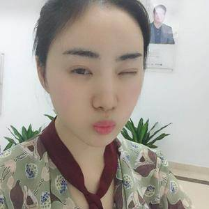 朴朴素素杭州健丽不开刀双眼皮术后14天第1页图