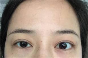 问:开内眼角要和双眼皮有必要同时做吗?