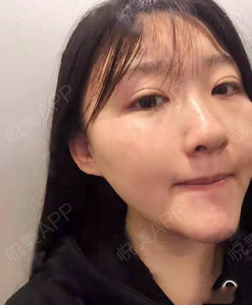 现在皮肤彻底干净通透了,暗喜~~虽然贵一点,但真的超级值,皮肤细腻,毛孔也收缩了,脸上小细纹也没有那么多了,肤色真的好均...