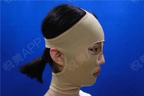 V-LINE瓜子脸手术手术当天_磨骨手术当天_面部轮廓手术当天_炼爱绝情i肺分享图片2