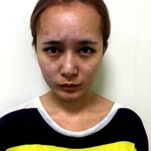 杭州健丽PC双眼皮