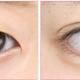 80%的人割完双眼皮后悔,原来是因为……