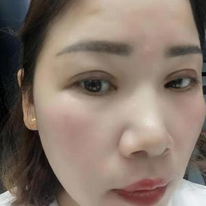 田雯双眼皮修复术后30天第3页图