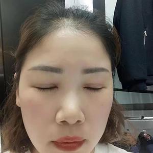 田雯双眼皮修复术后30天第2页图