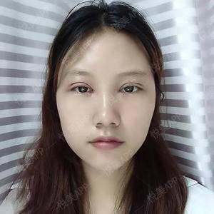 悦Mer_3194987736双眼皮手术术后1天第1页图