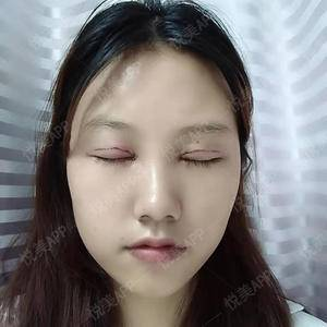 悦Mer_3194987736双眼皮手术术后1天第2页图