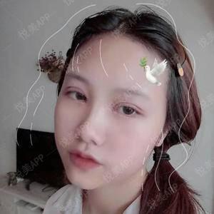 悦Mer_3194987736双眼皮手术术后3天第1页图