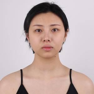 肋软骨隆鼻综合分享