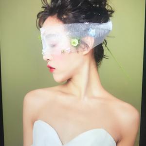 广州现代医院+自体肋软骨隆鼻