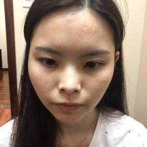 全鼻整形、3S鼻综合、