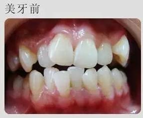 牙齿一下变整齐!分享下我快速美牙体验