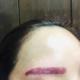 昨天刚去了艺星医疗美容医院做了洗眉!女主任医师的技术很好,一开始我好紧张以为很痛谁知,女主任医师上来技术很熟练好快就做好...