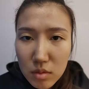 吸脂瘦脸术