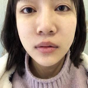 唇部综合+人中