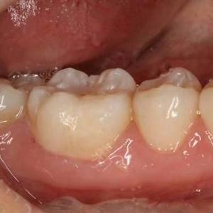 牙齿治疗日记